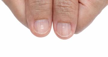 weisse-flecken-auf-fingernaegel